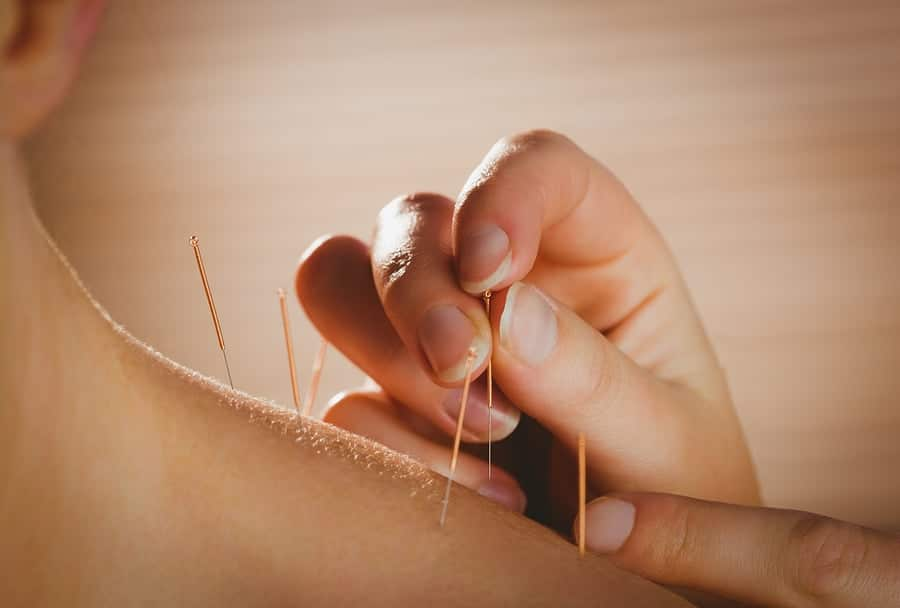 acupuncture melbourne
